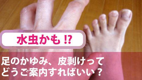 水虫かも!? 足のかゆみ、皮剥けってどうご案内すればいい?